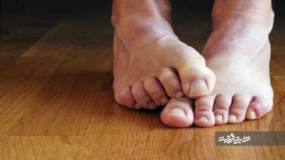 سادهترین راهکارها برای خلاصی از تعریق پا