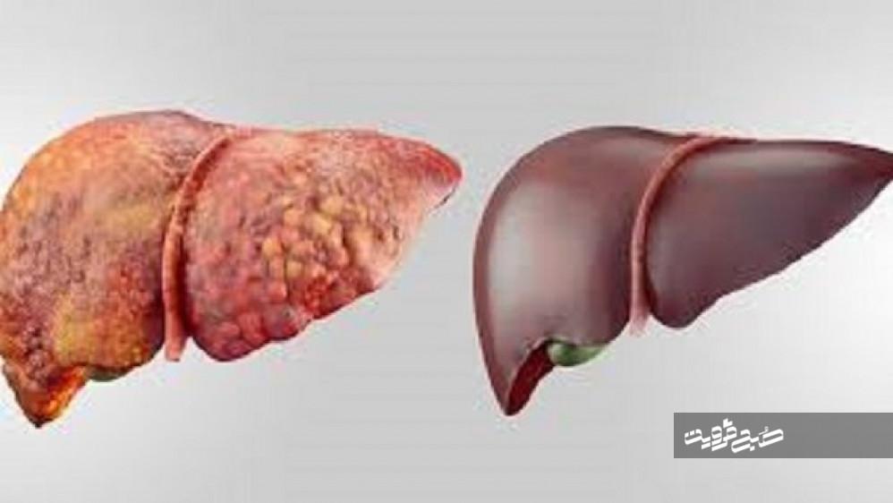 چهار توصیه کاربردی و مهم برای درمان کبد چرب