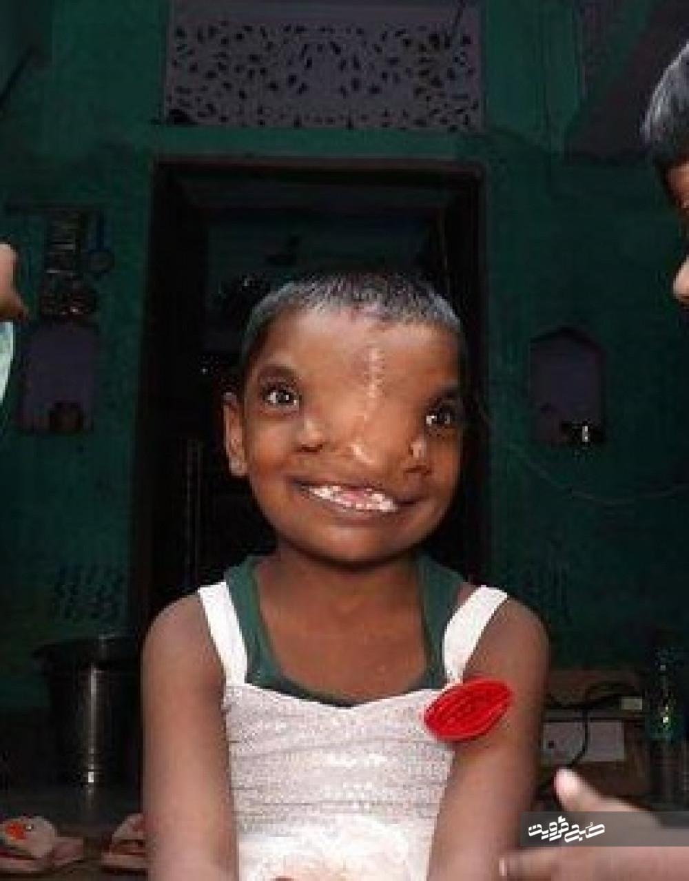عکس/ دختر هندی با دو بینی