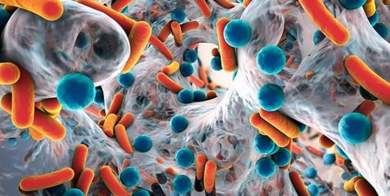 انگلیس، رکورددار مرگ زنان در اثر عفونت