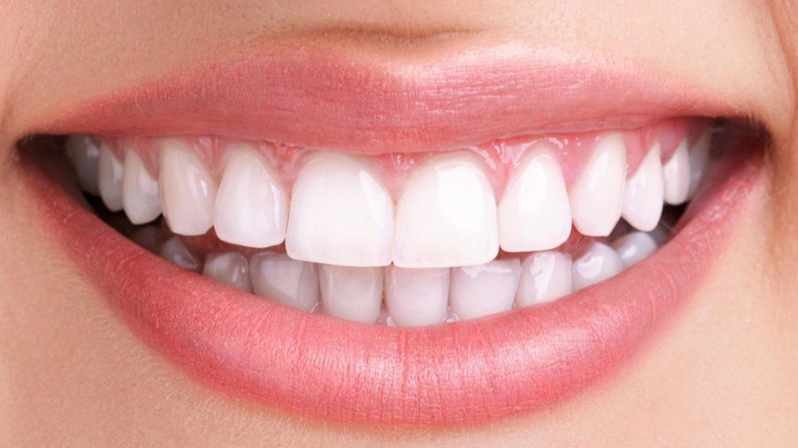 با کمترین هزینه دندانهایی از الماس داشته باشید/دندان هایتان را در خانه جرم گیری کنید