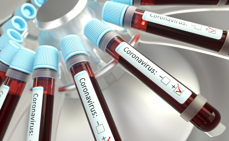 مجموع درگذشتگان کووید۱۹ به۳۹۹۳نفر رسید/ انجام بیش از ۲۲۰ هزار تست تشخیص کرونا در کشور
